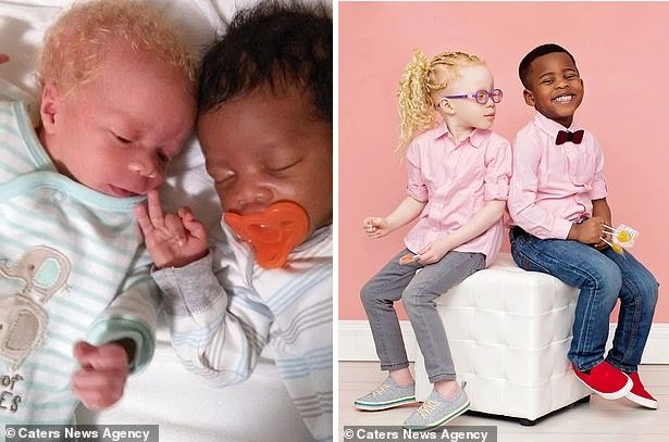 Женщина из Нигерии родила близняшек, один из которых оказался белым